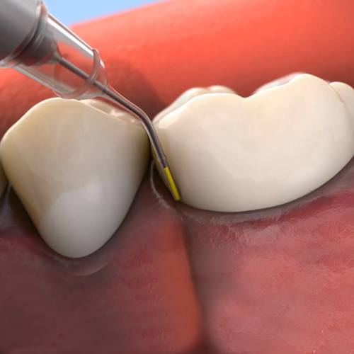 close up of periodontal maintenance